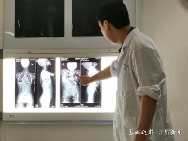 """""""中国梦 · 脊梁工程""""大型脊柱畸形义诊和扶贫救助活动"""