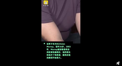 强生被判赔80亿美元3.png